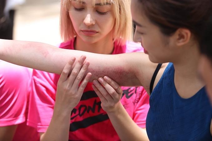 Hai cánh tay của Mỹ Linh bị trầy xướt,