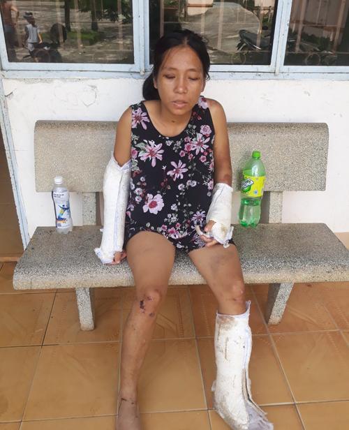 Chị Mến bị nhiều vết thương trên người và hiện điều trị tại Bệnh viện Đa khoa khu vực Nam Bình Thuận, sau trận đòn của chồng khuya 16/8.