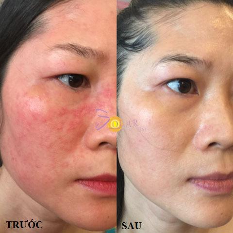 Ảnh trước và sau khi trịdị ứng da.