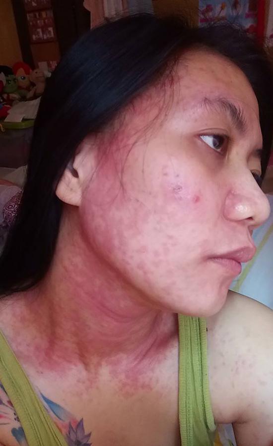 Grace Reguyal chia sẻ gương mặt bị phá hủy sau khi sử dụng kem làm trắng da có chứa thủy ngân. Ảnh: Bloomberg.