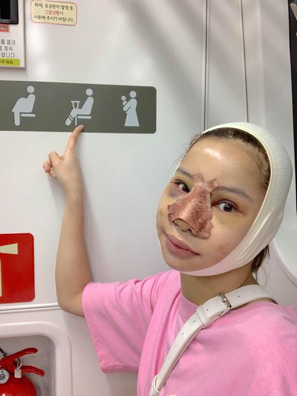 Lưu Đê Ly đi tàu điện ngầm, dạo phố xá Hàn Quốc sau phẫu thuật.