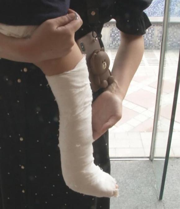 Chân phải bé Yiyi được băng bósau tai nạn hôm 12/9 ở khu vui chơi thành phố Hàng Châu, tỉnh Chiết Giang, Trung Quốc. Ảnh: Asiawire.