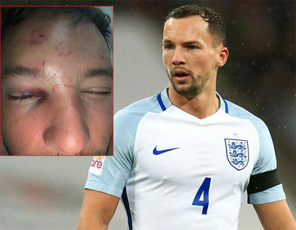 Danny Drinkwater với gương mặt bầm dập sau khi bị đánh.