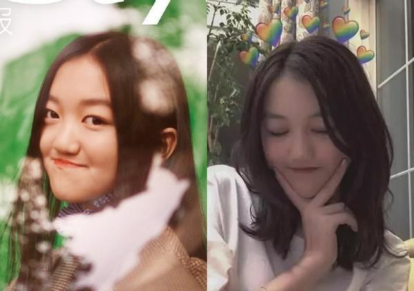 Lý Yên với gương mặt được cải thiện sau khi trải qua ca phẫu thuật gần nhất.