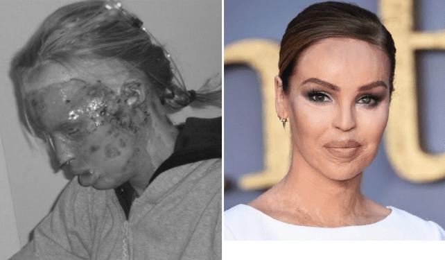 Katie Piper công bố ảnh khi vừa bị tạt axit (bên trái) và gương mặt đã được tái tạo của cô.