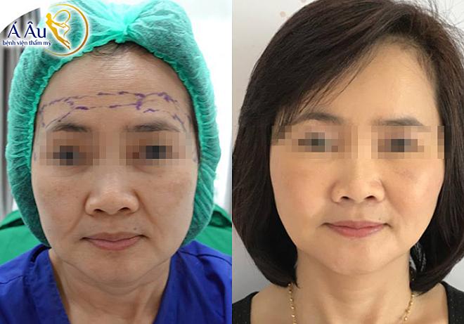 Kết quả trẻ hóa sau khi căng da chỉ vàng nano mặt và cổ.
