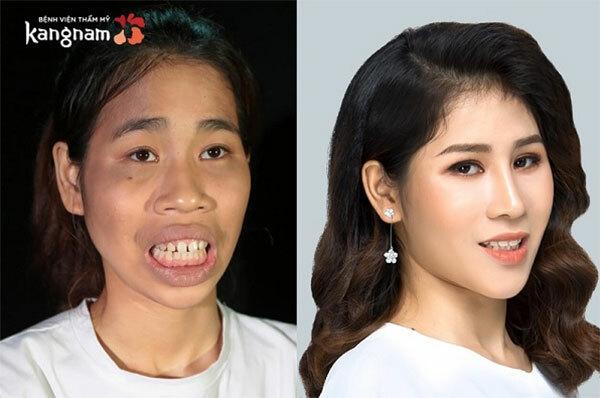 Cao Thị Lan trở nên xinh đẹp sau phẫu thuật thẩm mỹ.