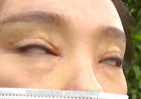 Li không thể nhắm mắt sau khi phẫu thuật cắt mí.