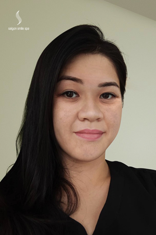 Là một đầu bếp tại Sài Gòn, chị Liên Nguyễn (36 tuổi) thường xuyên phải tiếp xúc với nhiệt độ cao và khói bụi. Tác động từ môi trường ảnh hưởng không nhỏ đến làn da của chị, tốc độ lão hóa da diễn ra nhanh hơn. Da mặt chảy xệ, thói quen nhíu mày và dụi mắt làm cho vùng da ở mắt và trán nhăn nheo như tuổi 60. Ngoài ra, da mặt chị còn bị sần sùi, lỗ chân lông to hơn bình thường.