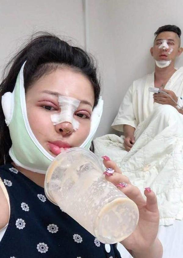 Tháng 3/2019, cặp tình nhân cùng nhau thực hiện phẫu thuật thẩm mỹ toàn bộ gương mặt.