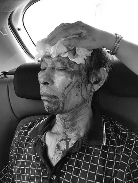 Ông Tân được đưa đi cấp cứu, ngườiđầy vết máu.