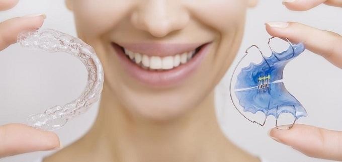 Retainer giúp cố định hàm, hạn chế xô lệch răng sau khi chỉnh hình.