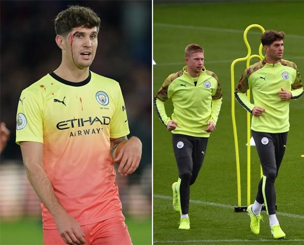 Stones bị thương ở mắt sau trận thắng 2-0 trước Crystal Palace hôm 19/10