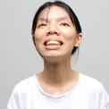 17 giờ phẫu thuật cho cô gái mắt nhỏ, hàm hô, mũi bé