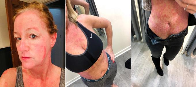 Vẩy đỏ xuất hiện kín cơ thể, ảnh hưởng nghiêm trọng đến sức khỏe và cuộc sống của Paula Taylor.