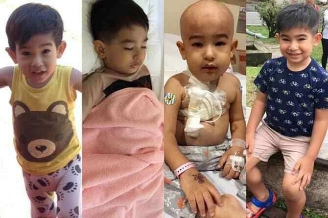 Cậu bé từng bị rụng hết tóc trong quá trình điều trị bệnh ung thư.
