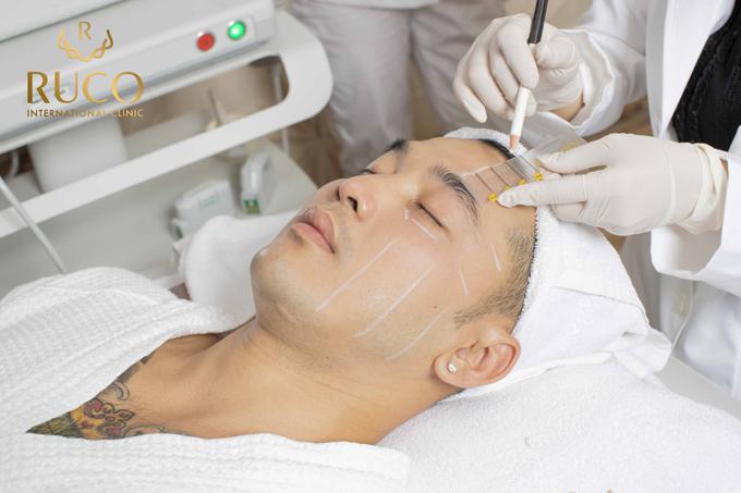 Ưng Hoàng Phúc tiết lộ từng gặp tình trạng gương mặt khá tròn trịa với nhiều nọng mỡ dưới cằm và hai bên xương hàm, nếp nhăn nơi khóe mắt và rãnh miệng trũng sâu. Được cô bạn thân Phạm Quỳnh Anh mách nước, anh đã tìm tới Ruco International Clinic để tư vấn và được chỉ định thực hiện Thermage FLX kết hợp Ultherapy. Kết quả, khuôn mặt anh thon gọn, rõ đường xương hàm nam tính, làn da sáng, săn chắc hơn, kết cấu da trở nên mịn màng và đặc biệt những vết nhăn già nuakhông còn.