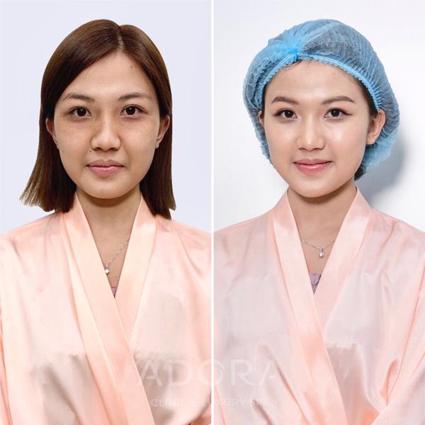 Làn da của Lương Thanh thay đổi tích cực sau khi thực hiện chăm sóc da công nghệ Adosilk Collagen