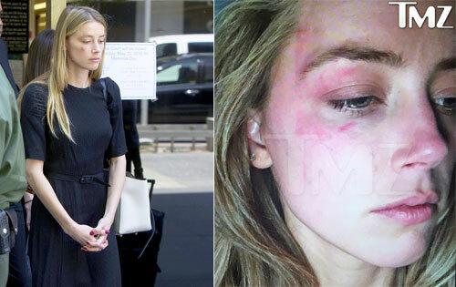 Amber đến tòa vào tháng 6/2016 với gương mặt thâm tím, cáo buộc Johnny Depp bạo hành.