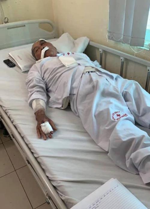 Cụ Lâm hiện điều trị tại Bệnh viện Quân Y 354 với đa chấn thương, sau khi bị một đồng nghiệp hành hung sáng 12/11.
