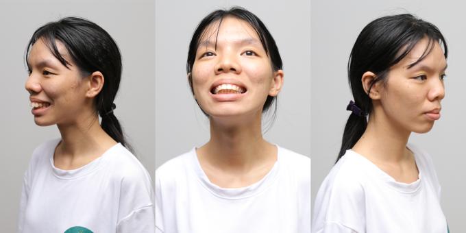 Chân dung của cô gái Nguyễn Thẩm Mỹ Diện trước khi phẫu thuật.