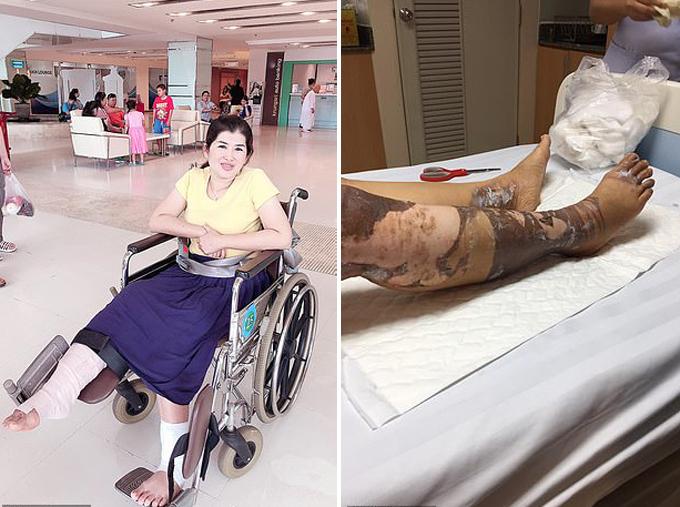 Malinee phải dùng tới xe lăn khi điều trị tại bệnh viện hai tháng qua do vết bỏng nặng ở chân. Ảnh: Viral Press.