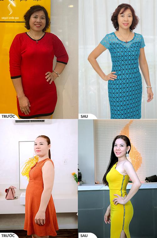 Khách hàng Kim Ngân ( 53 tuổi) giảm 9kg mỡ, 29 cm bụng sau liệu trình giảm béo công nghệ cao tại Saigon Smile Spa.