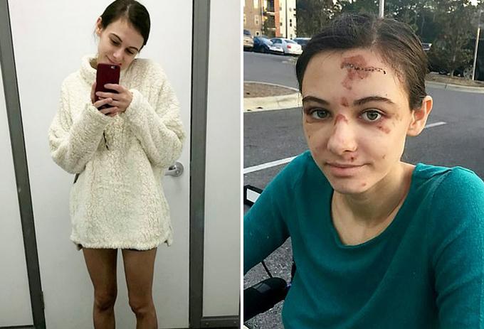 Megan trước và sau tai nạn. Ảnh: FB.