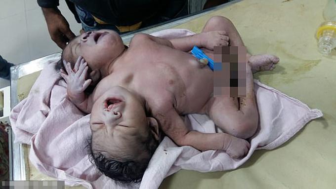 Em bé có hai đầu, ba tay chào đời hôm 23/11 ở bang Madhya Pradesh, Ấn Độ. Ảnh: CartersNewsAgency.