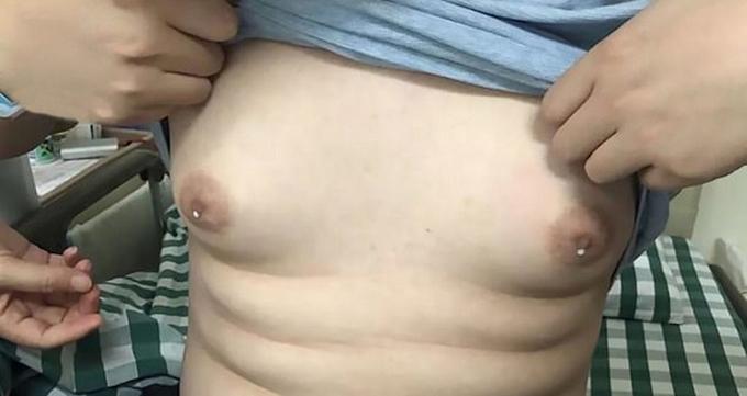 Bầu ngực tiết sữa của Wang (25 tuổi), ở Hàng Châu, Trung Quốc. Ảnh: Pear Video.