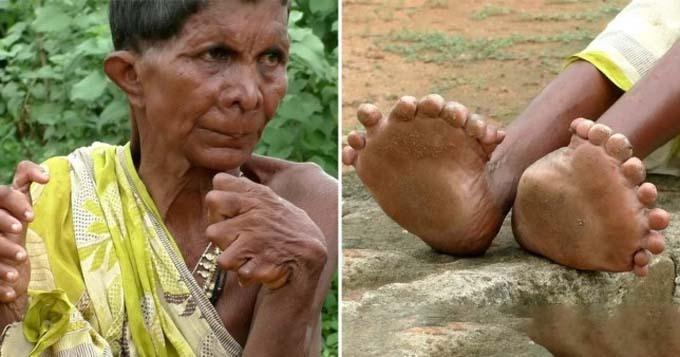 Bà Kumar Nayak với đôi bàn tay, bàn chân thừa nhiều ngón. Ảnh: SWNS.