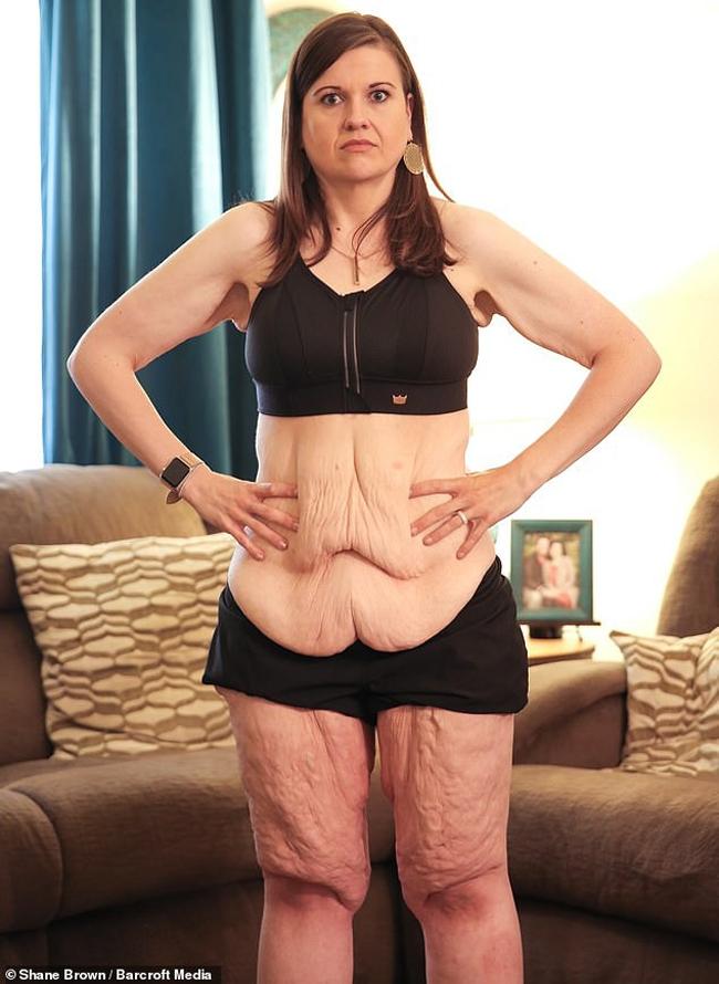 Cô dự định sẽ cắt bỏ da thừa vào mùa hè sang năm sau khi giảm thành công 118 kg.