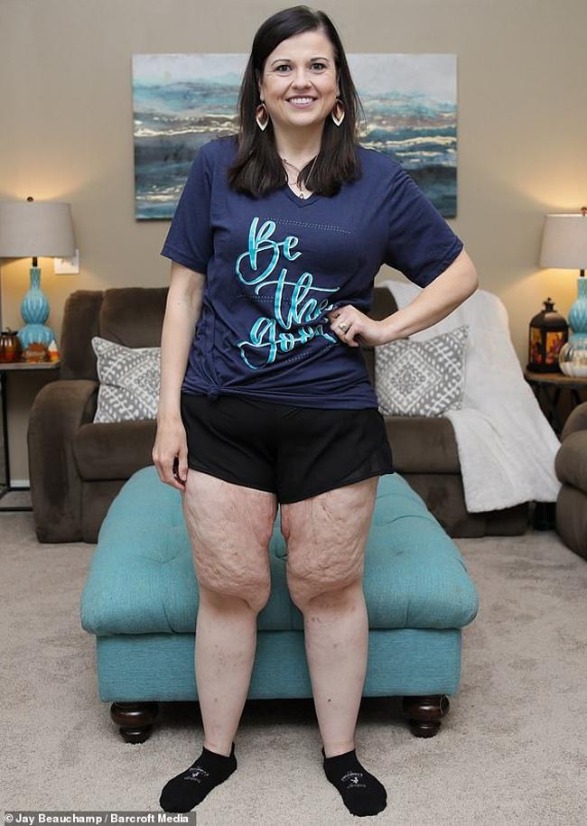 Thay vì phẫu thuật thu nhỏ dạ dày như gợi ý của bác sĩ, Catherine quyết tâm giảm cân tự nhiên.