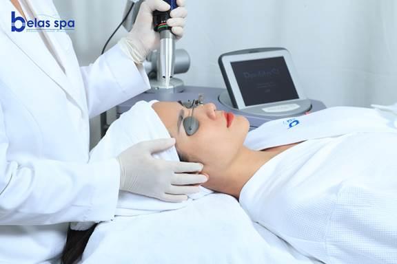 Khách hàng thực hiện dịch vụ trị nám bằng laser Revelite SI.