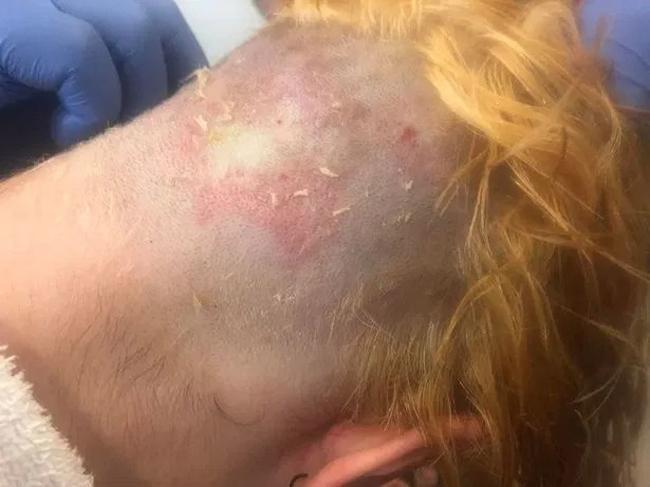 Sau một tiếng bôi thuốc lên đầu, Annaliese thấy nóng rát da đầu, cổ.