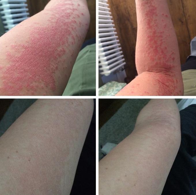 Làn da của Hanna thay đổi rõ rệt sau thời gian ngắn.