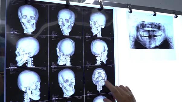 Các bác sĩ trao đổi về phương pháp,  kỹ thuật phức tạp để phẫu thuật cho Duyên.