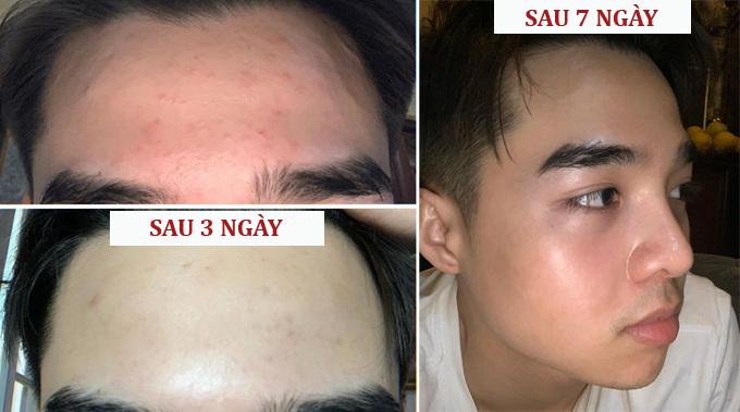 Sau một tuần, làn da của nam vlogger có sự thay đổi tích cực, không còn mẩn đỏ với các đốm mụn li ti kém thẩm mỹ.