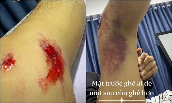 Chân Thanh Bình bị thương nhiều chỗ.