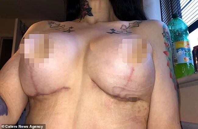Ngực của Zara tụ máu, biến dạng sau lần phẫu thuật đầu tiên.