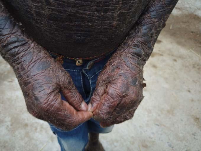 Jagannath phải chịu cảm giác đau đớn, căng da vì căn bệnh vảy cá hiếm gặp. Ảnh: SWNS.