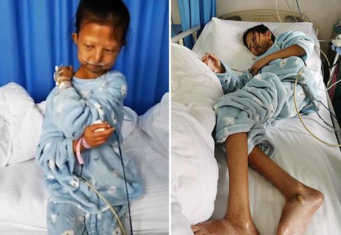 Wu Huayan, nữ sinh 24 tuổi ở tỉnh Quý Châu, Trung Quốc, trên giường bệnh trước khi qua đời hôm 13/1. Ảnh: Pear Video.