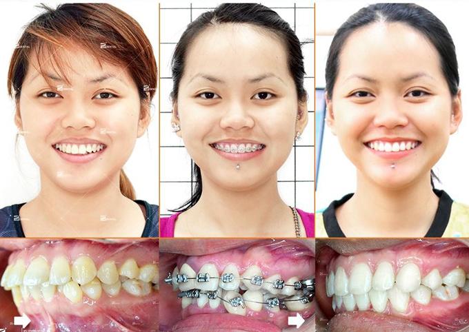 Mỹ Linh chi 26 triệu đồng để niềng răng mắc cài kim loại.