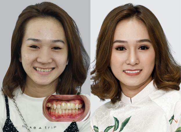 9X Việt kiều Mỹ lột xác ngoại hình sau khi phẫu thuật cắt mắt, nâng mũi và bọc răng sứ toàn hàm tại Bệnh viện JW