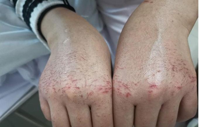 Hai bàn tay nứt nẻ của Hu Pei do rửa tay, sử dụng chất khử trùng nhiều. Ảnh: Sin Chew.