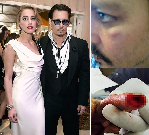 Johnny Depp tố cáo vợ cũ là kẻ bạo hành.