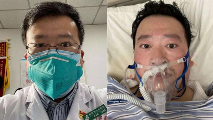 Lý Văn Lượng trong thời gian làm việc ở bệnh viện (trái) và khi chiến đấu chống lại căn bệnh corona. Ảnh: Weibo/CNN.