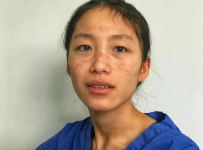 Gương mặt đầy vết hằn vì đeo khẩu trang của y tá Chen Ying. Ảnh: QQ.