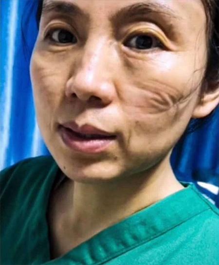 Khuôn mặt nhiều vết hằn vì đeo khẩu trang lâu của một nữ y tá ở Vũ Hán. Ảnh: PD China.