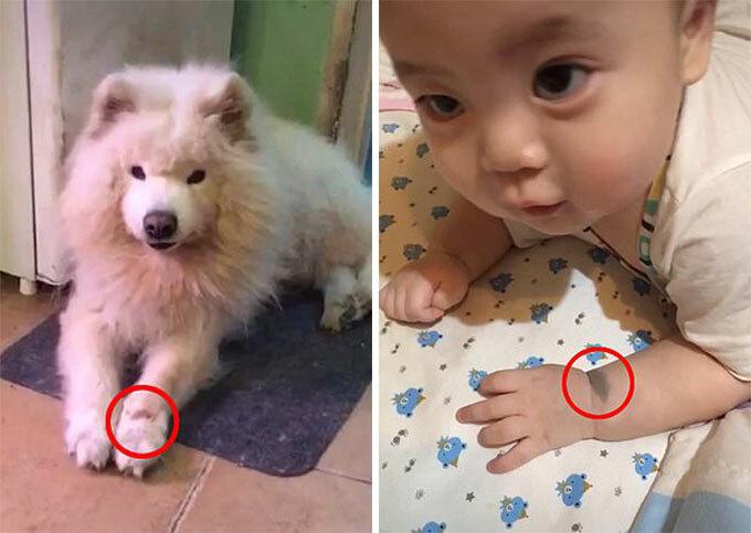Chú chó Reno (trái) với vết sẹo ở chân trước bên trái và cậu bé Tuan Tuan với vết bớt bên tay trái. Ảnh: WeChat.